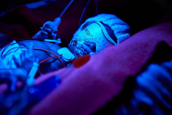 Premature baby under a UV light